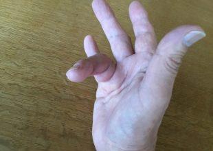 変形した指が少し治ってまいりました。